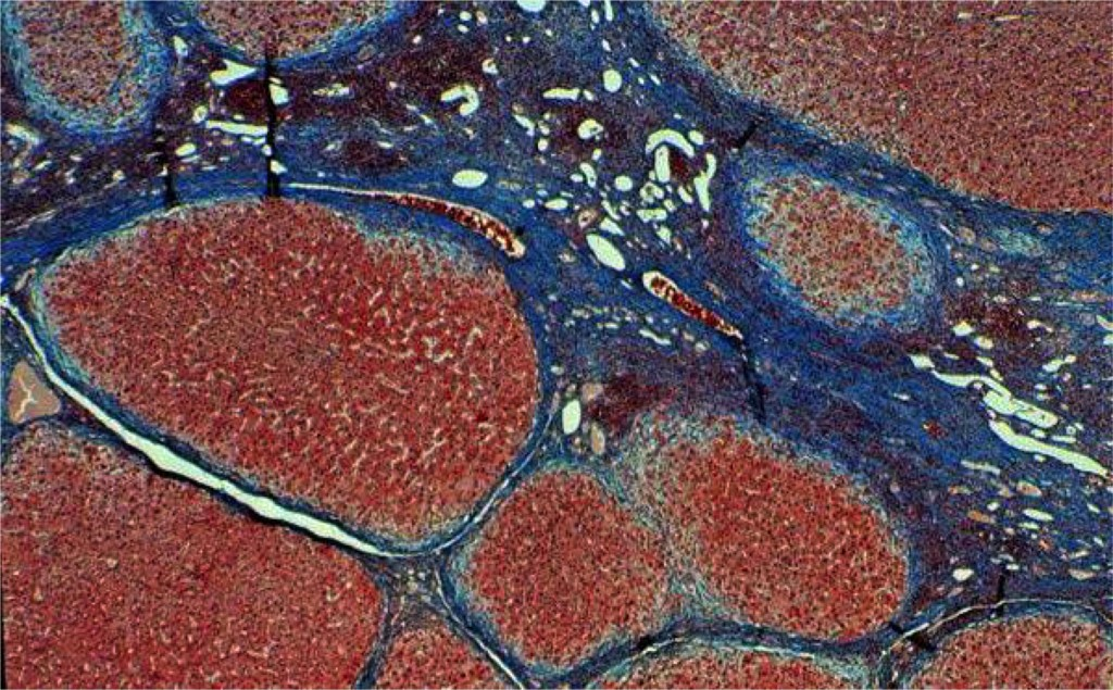 A liver biopsy sample, as seen under the microscope